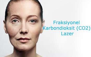 Fraksiyonel Karbondioksit Lazer Tedavisi